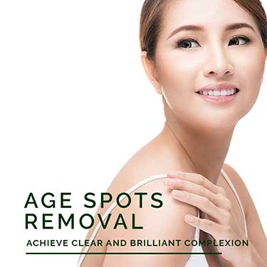 Age Spots Removal Treatment