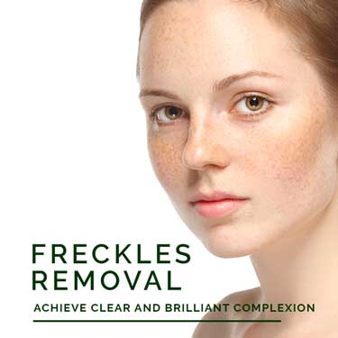 Freckles Removal Treatment