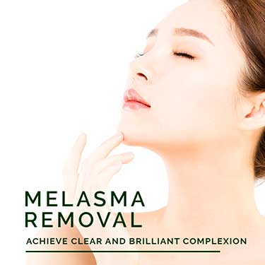 melasma Removal Treatment